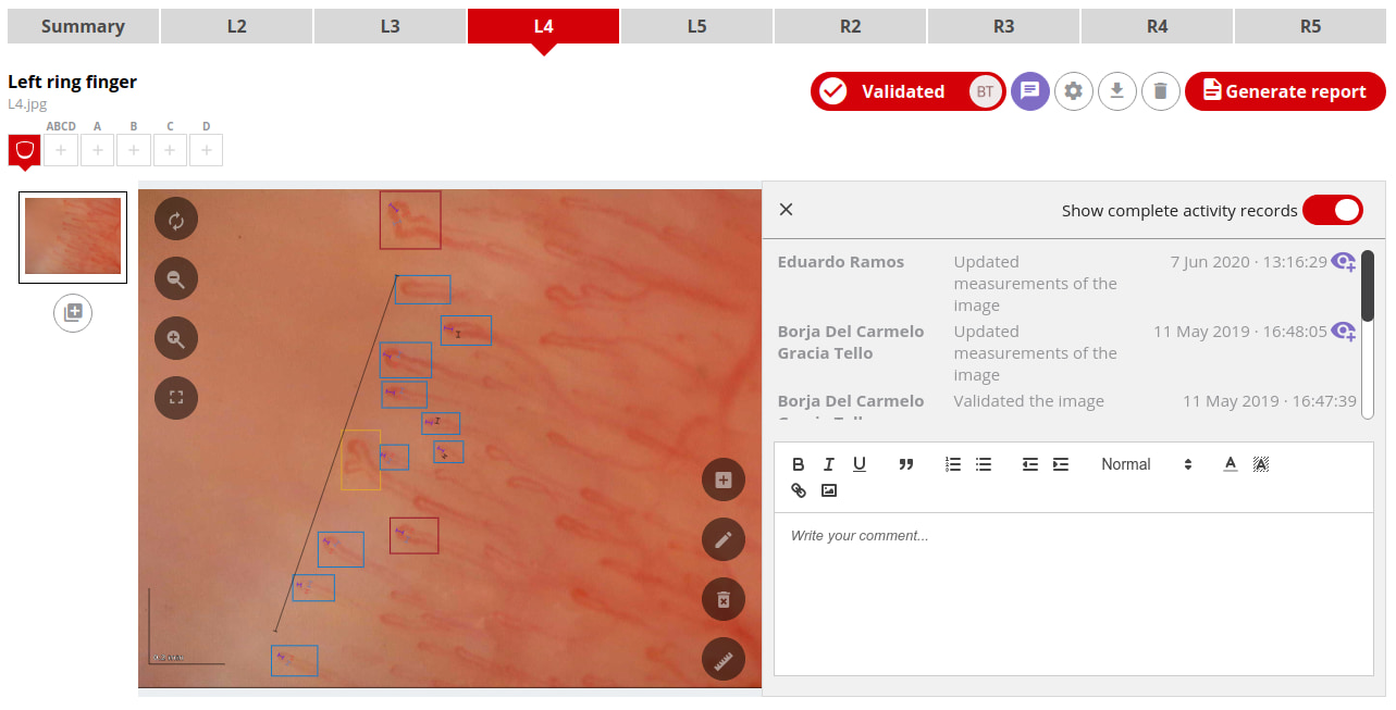 Visualize changes in capillaries made by others (or yourself) interactively with Capillary.io.
